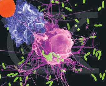 肺吞噬细胞吞噬大肠杆菌
