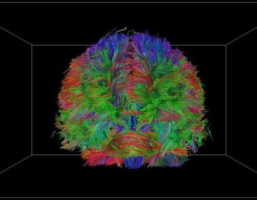科学家首次绘制出人类大脑3d结构高清图像(图)