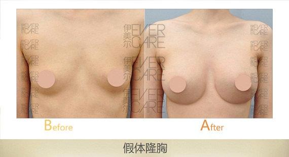 天津隆胸的方式有几种